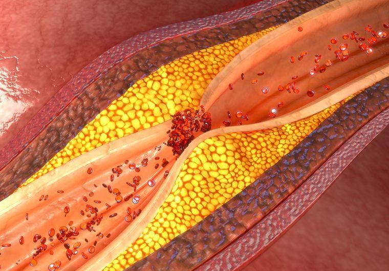 Ateroskleroza je odgovorna za najviše smrti