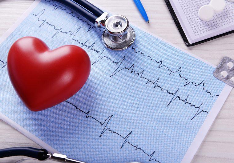 Fibrilacija atrija (AFIB) i visoki tlak su najčešći rizični faktori za bolesti srca i nastanak moždanog udara