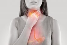 GERB uzrok kašlja