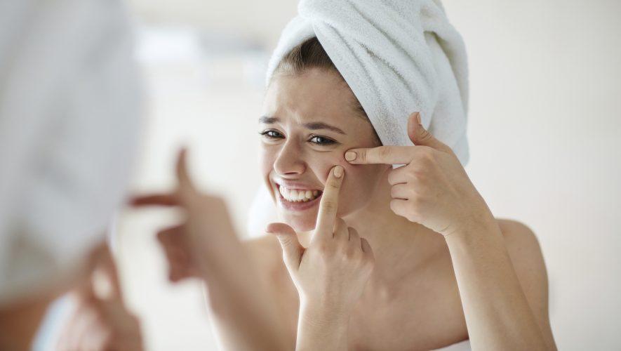 Akne mogu imati i psihološke posljedice