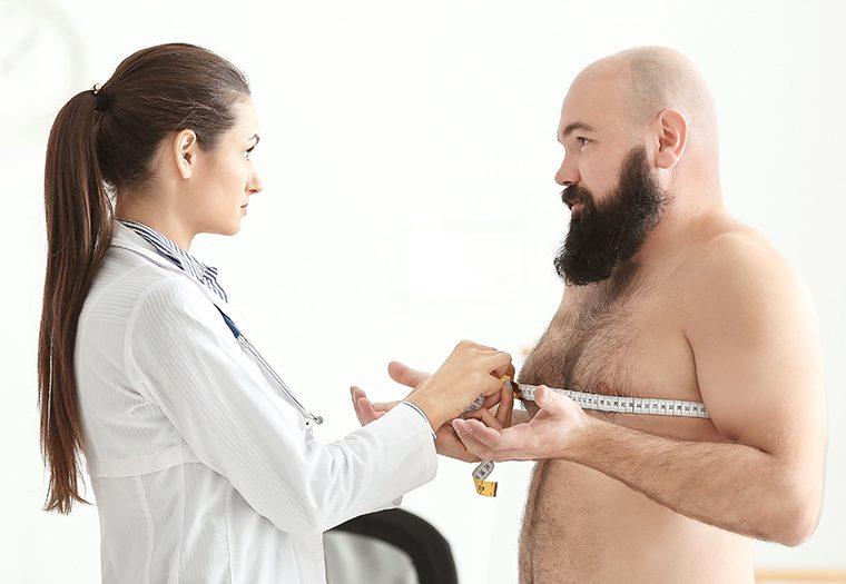 ginekomastija, povećane grudi kod muškaraca