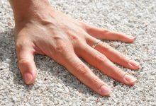 zdravi nokti