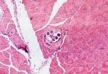 Trihineloza je parazitska bolest, a najbolja zaštita je dobro kuhanje ili pečenje mesa