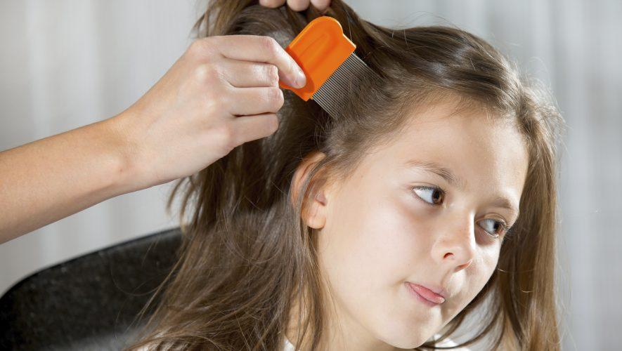 Uši u kosi i kako ih se riješiti