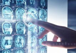 protein mozga ključan za oporavak od moždanog udara