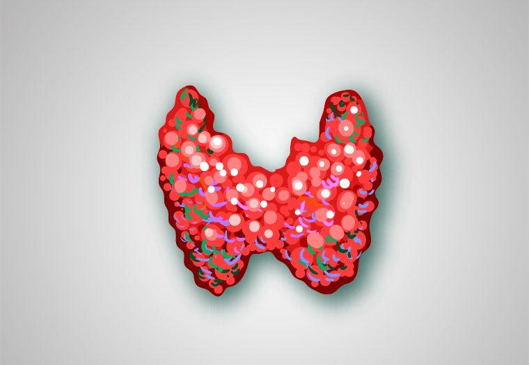 bolesti štitnjače, zlijezda, stitnjaca, tireotoksikoza, hipotireoza