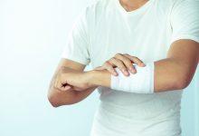 riječ farmaceuta, elektricitet, liječenje kroničnih rana