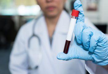 Donosimo upute za pacijente na antikoagulantnoj terapiji
