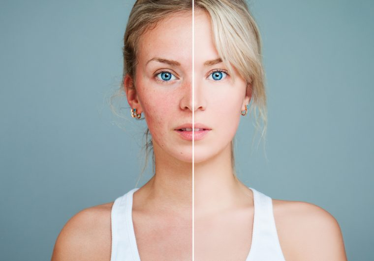 Rozacea - bolest kože 21. stoljeća