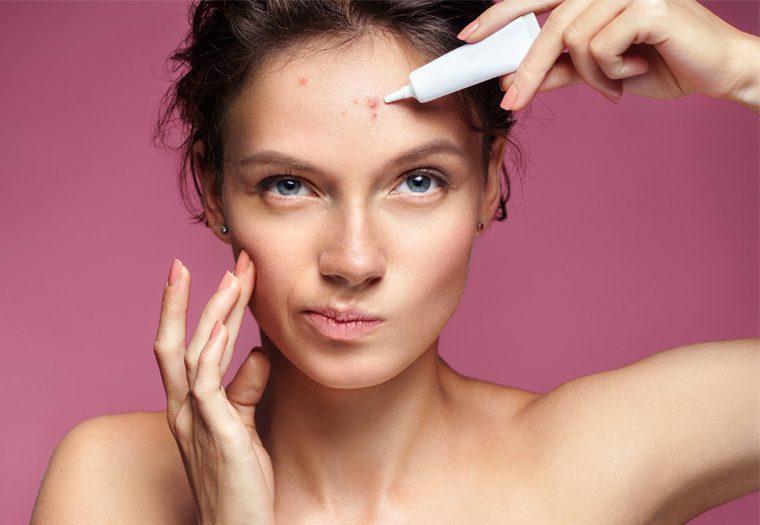 Akne u fokusu: Ožiljci od akni i hiperpigmentacija mogu se ublažiti