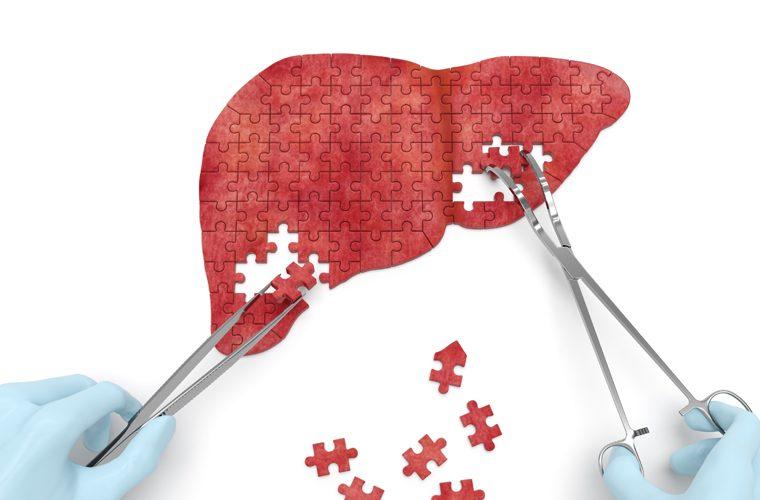 ciroza jetre - simptomi i liječenje