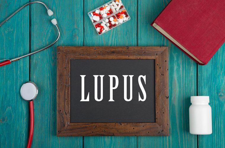 lupus je autoimuna bolest a ovo su najčešći simptomi