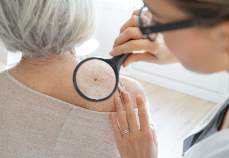 rak kože - za melanom ste čuli a evo koja su druga maligna oboljenja kože