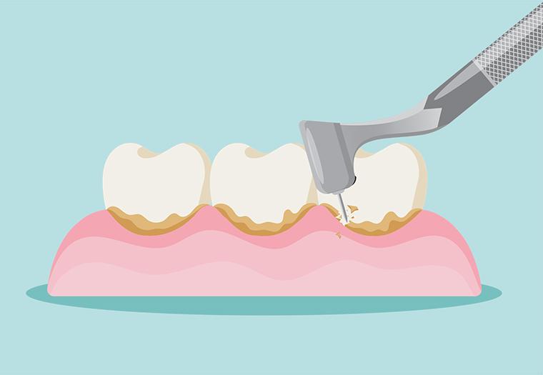 Zdravlje zubi Čistite zubni plak jer zbog njega može nastati zubni kamenac