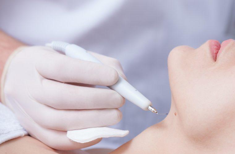 bradavice nastaju kao reakcija kože na infekciju virusima a ovo su najčešće vrste bradavica
