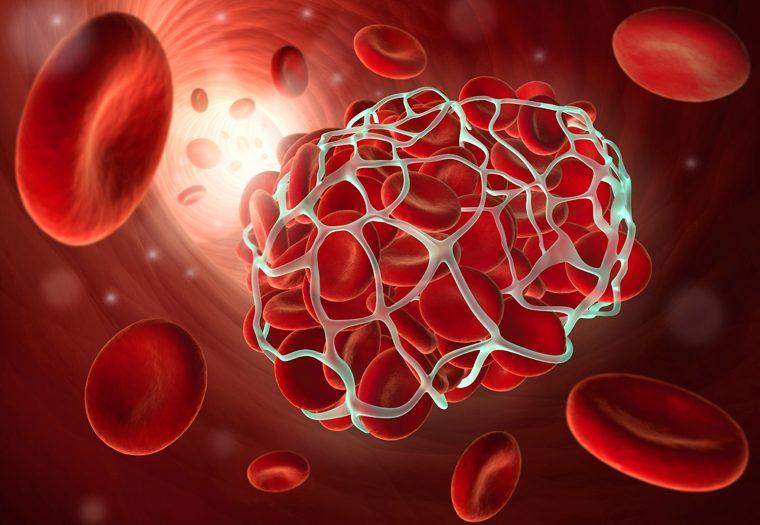 poremećaj zgrušavanja krvi - kako mutacije gena kontroliraju zgrušavanje krvi