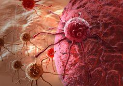 Rak tumor