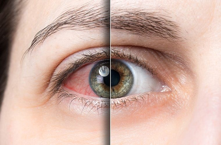 Konjuktivitis oci oko