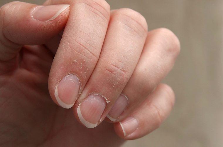 Paronihija nokti