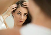 seboroicni dermatitis upala koze stres seboreja