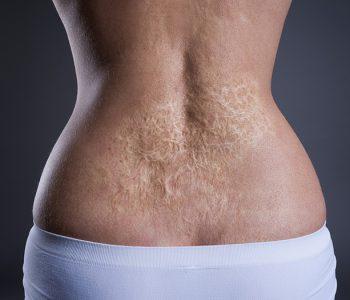 dermatix oziljci operacije opekline ozljede