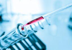 COVID-19 serolosko testiranje koronavirusa HZJZ