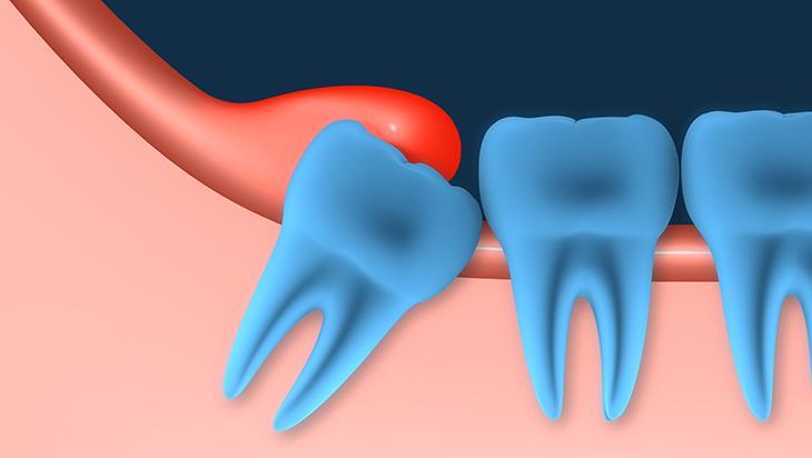 kutnjaci, zubi, umnjaci2