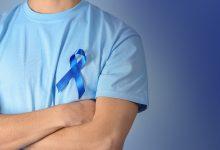 rak debelog crijeva karcinom rak kolonoskopija