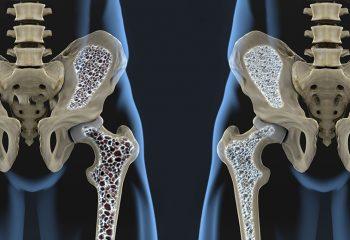 osteoporoza kosti krhke kosti lomljive kosti