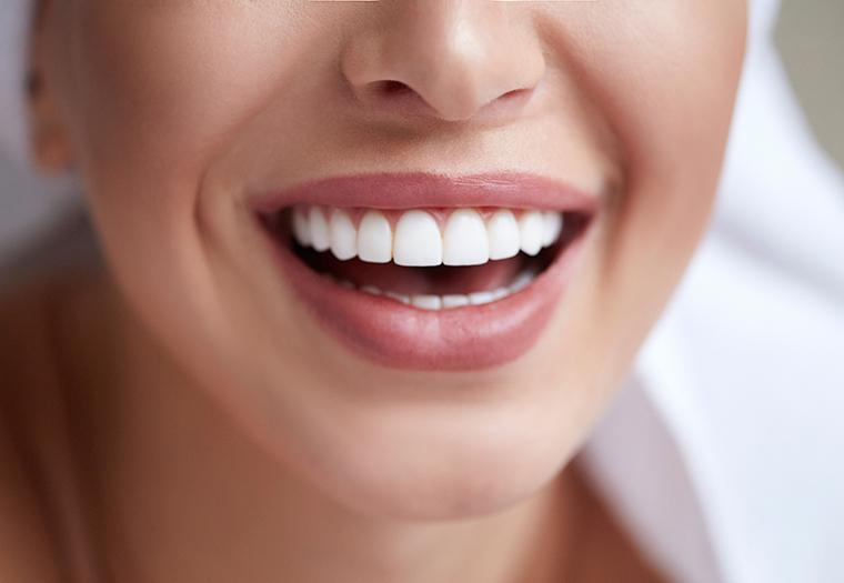 zubne ljuskice ljuskice za zube osmijeh