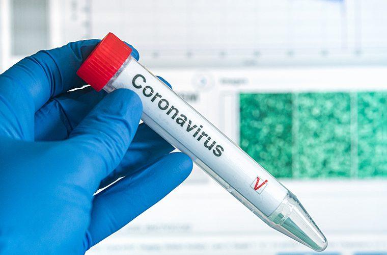 koronavirus COVID-19 drugi val Epidemioloske mjere Bernard Kaic socijalno distanciranje cjepivo zastitne maske imunitet krda seroloski testovi