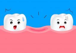 sprijecite gubitak zdravog zuba oralna higijena curasept paradontoza gingivitis
