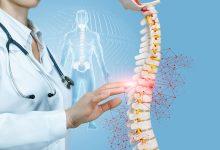 vertebroplastika bolovi u kraljeznici
