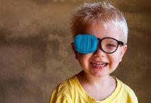 strabizam kod djece