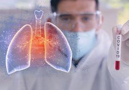 akutni respiratorni distres sindrom ARDS COVID-19