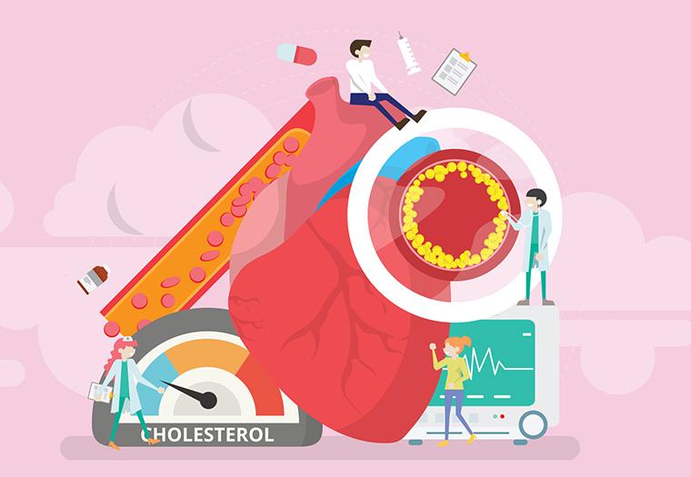 niska razina kolesterola u krvi kolesterol zdravlje srca i krvnih zila