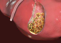 problemi sa zuci operacija zuci zucni kamenac zuc simptomi