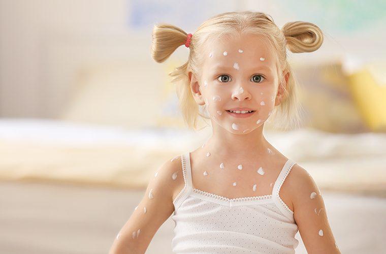 osip kod djece ospice rubeola vodene kozice