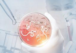 ebola virus simptomi