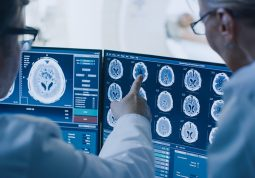 Kontrastna sredstva u radiologiji MR RTG CT alergije alergijske reakcije