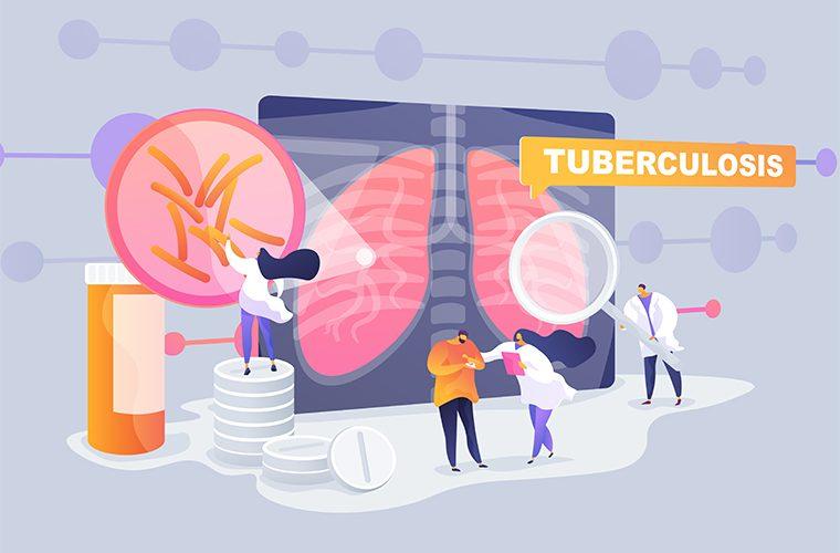 tuberkuloza simptomi plućna bolest Svjetski dan tuberkuloze