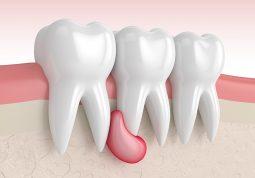 ciste celjusti zubna cista