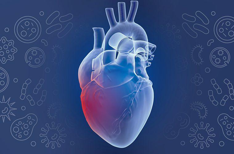 Infektivni endokarditis bolest srcanih zalistaka