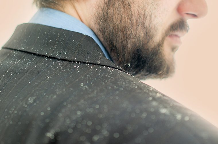 perut u kosi prhut bolesti vlasista kosa lijecenje