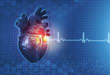 srcani zalisci simptomi