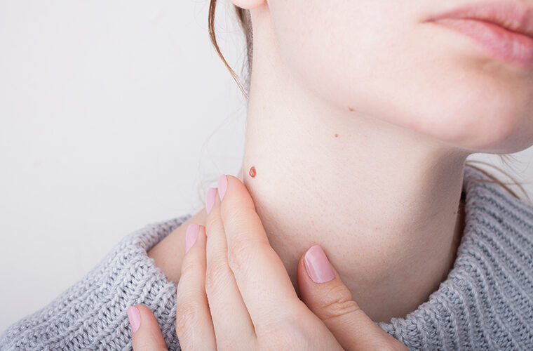 virusne bradavice na kozi Humani papiloma Pox virus ukanjanje lijecenje HPV
