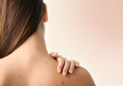 akne na tijelu lijecenje savjeti