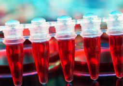krv iz pupkovine maticne stanice krvi iz pupkovine banka krvi iz pupkovine
