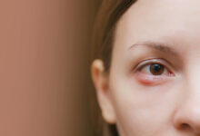 izrasline oko ociju jecmenac ksantelazma aterom bradavice