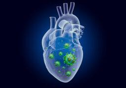 upala srcanog misica miokarditis perikarditis cjepivo Pfizer/BioNTech Moderna nuspojave